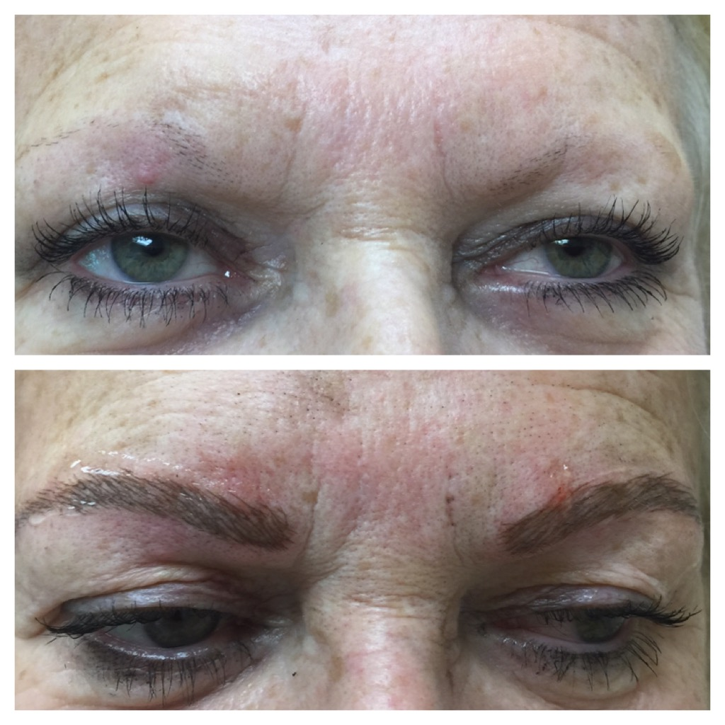 Microblading • Medical Aesthetics of NJ