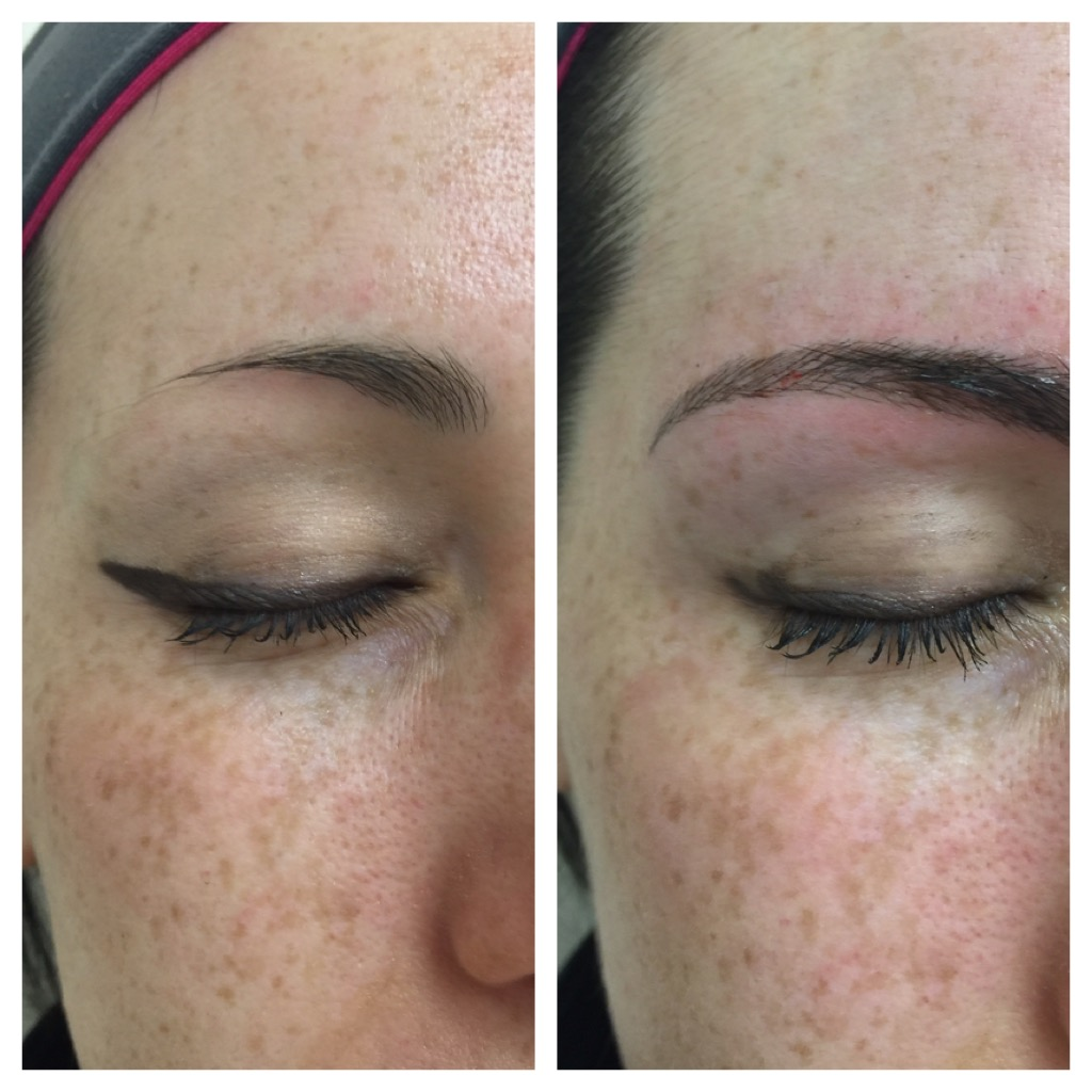 Microblading Medical Aesthetics Of Nj