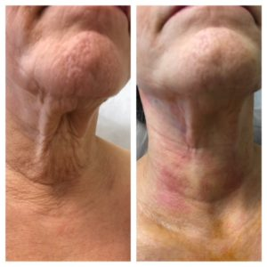 Neck Thread lift